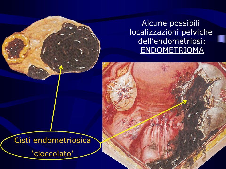 Cisti endometriosica cioccolato Alcune possibili localizzazioni pelviche dellendometriosi: ENDOMETRIOMA