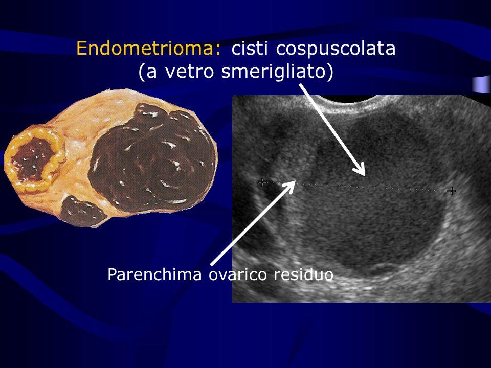 Parenchima ovarico residuo Endometrioma: cisti cospuscolata (a vetro smerigliato)