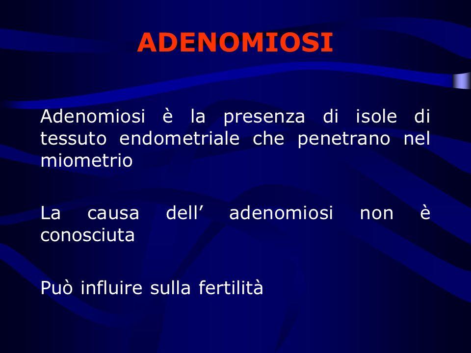 ADENOMIOSI Adenomiosi è la presenza di isole di tessuto endometriale che penetrano nel miometrio La causa dell adenomiosi non è conosciuta Può influir