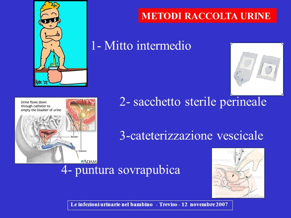 1- Mitto intermedio 2- sacchetto sterile perineale 3-cateterizzazione vescicale 4- puntura sovrapubica Le infezioni urinarie nel bambino - Treviso - 1
