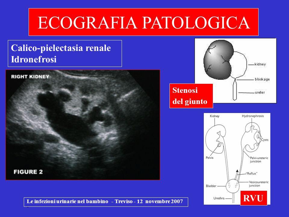 Le infezioni urinarie nel bambino - Treviso - 12 novembre 2007 - ECOGRAFIA PATOLOGICA Calico-pielectasia renale Idronefrosi RVU Stenosi del giunto