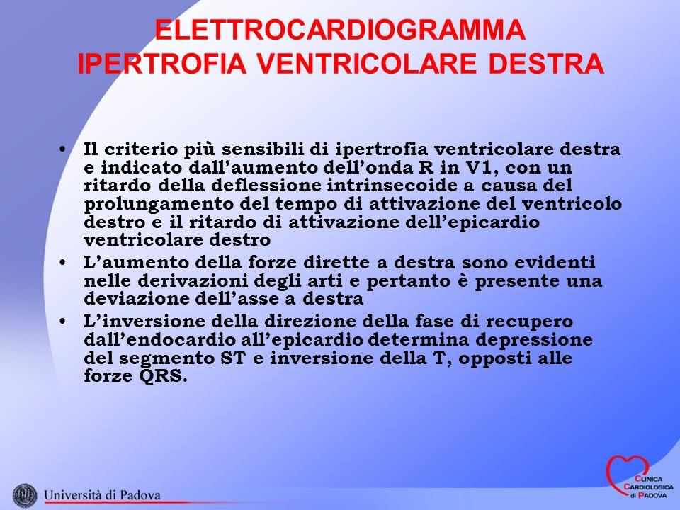 ELETTROCARDIOGRAMMA IPERTROFIA VENTRICOLARE DESTRA Il criterio più sensibili di ipertrofia ventricolare destra e indicato dallaumento dellonda R in V1