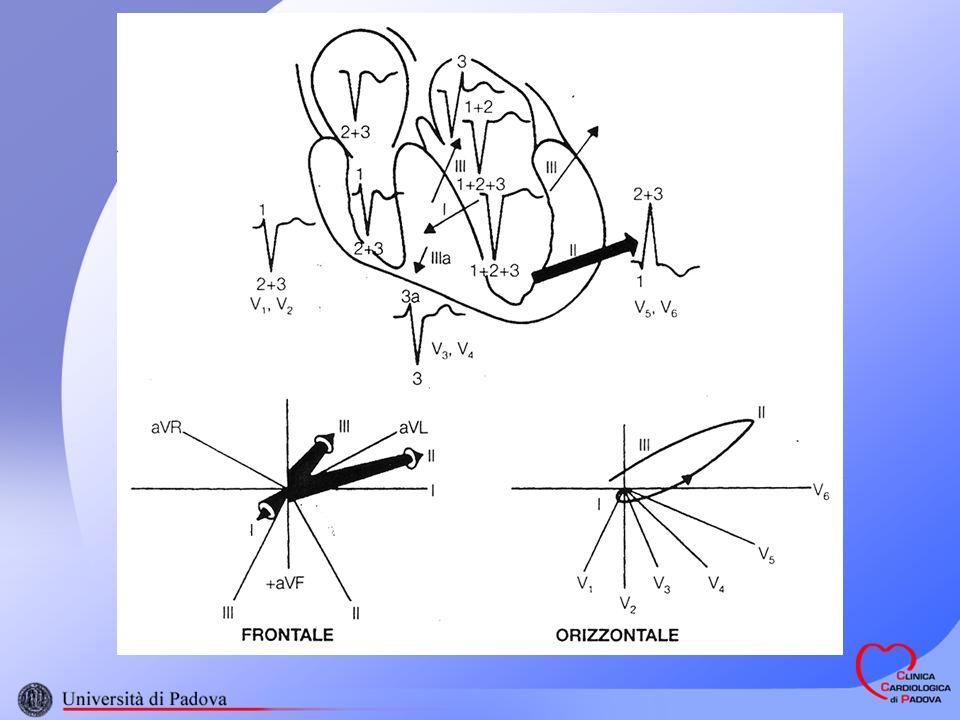 (secondo Romhilt & Estes) Se il punteggio > o = 5; Ipertrofia presente Se il punteggio = 4 ; Ipertrofia probabile