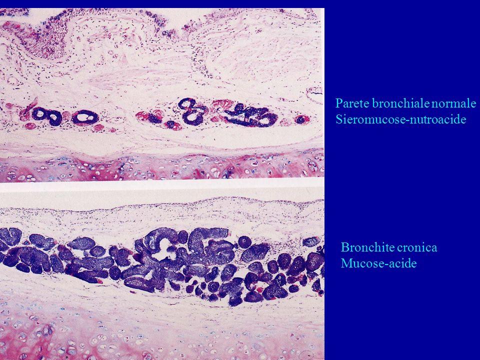 Parete bronchiale normale Sieromucose-nutroacide Bronchite cronica Mucose-acide