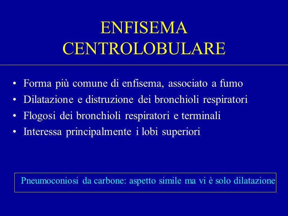 ENFISEMA CENTROLOBULARE Forma più comune di enfisema, associato a fumo Dilatazione e distruzione dei bronchioli respiratori Flogosi dei bronchioli res