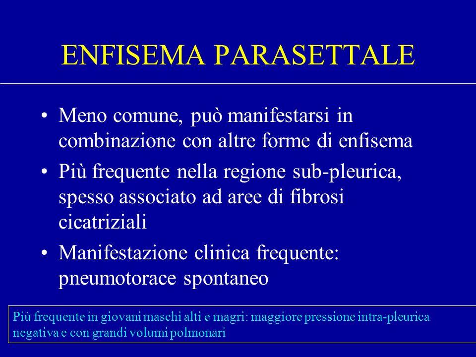 ENFISEMA PARASETTALE Meno comune, può manifestarsi in combinazione con altre forme di enfisema Più frequente nella regione sub-pleurica, spesso associ