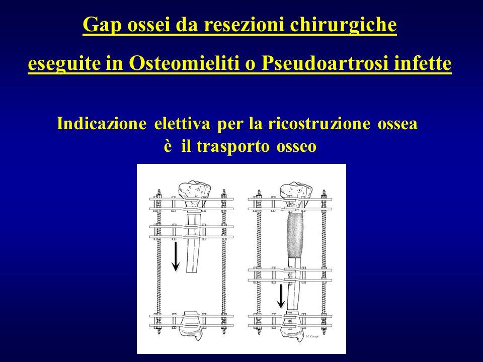 Gap ossei da resezioni chirurgiche eseguite in Osteomieliti o Pseudoartrosi infette Indicazione elettiva per la ricostruzione ossea è il trasporto oss