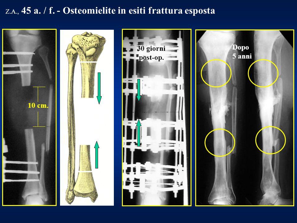30 giorni post-op. Z.A., 45 a. / f. - Osteomielite in esiti frattura esposta Dopo 5 anni 10 cm.