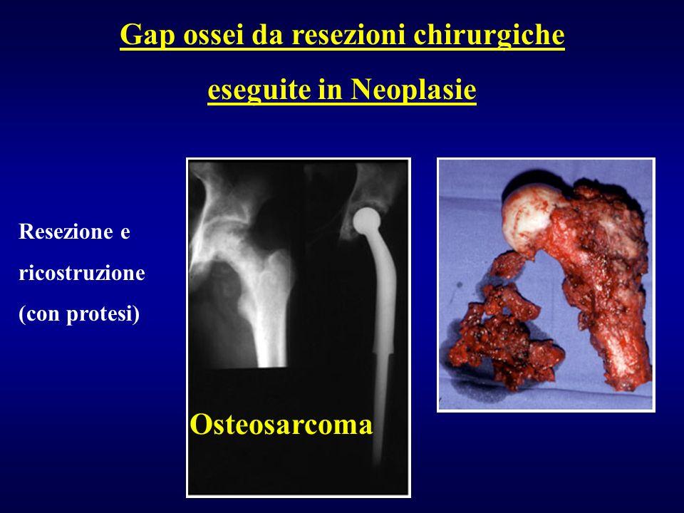 Gap ossei da resezioni chirurgiche eseguite in Neoplasie Osteosarcoma Resezione e ricostruzione (con protesi)