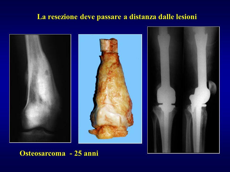 Osteosarcoma - 25 anni La resezione deve passare a distanza dalle lesioni