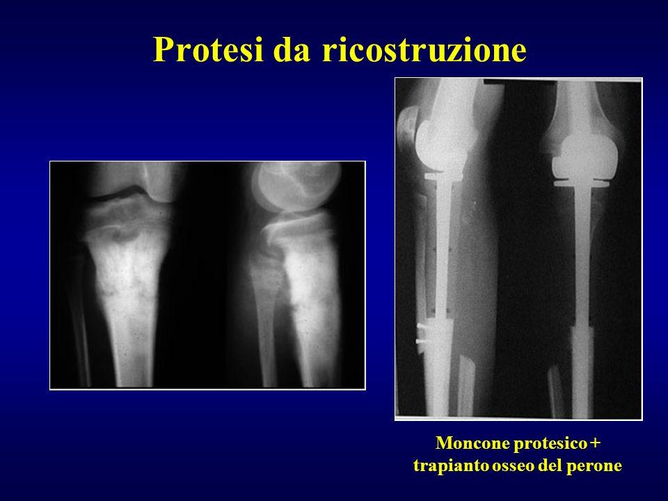Protesi da ricostruzione Moncone protesico + trapianto osseo del perone