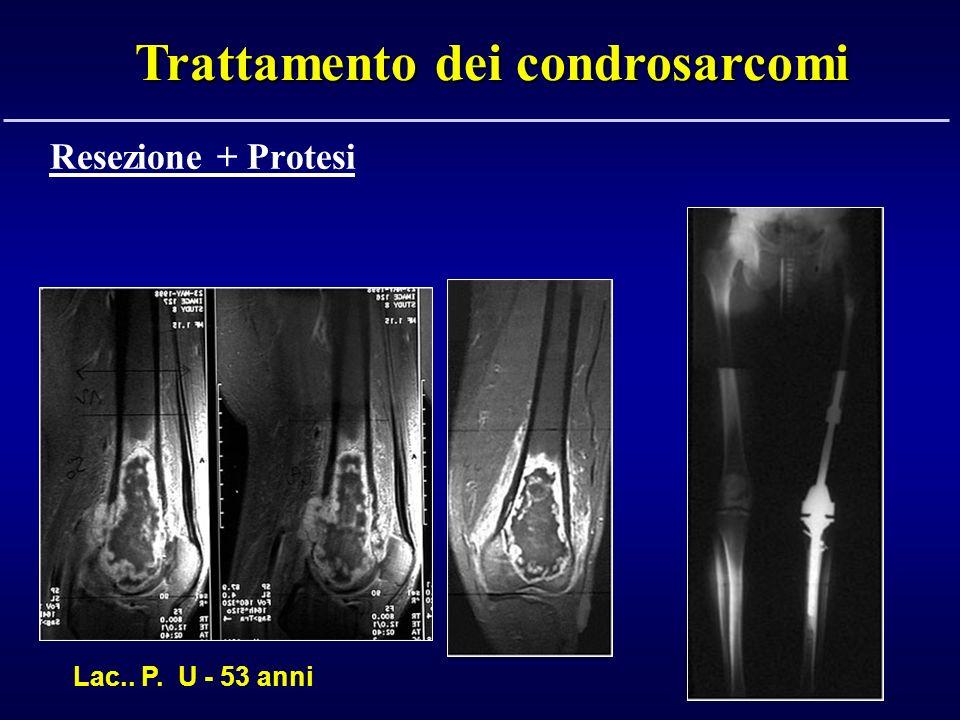 Lac.. P. U - 53 anni Trattamento dei condrosarcomi Resezione + Protesi