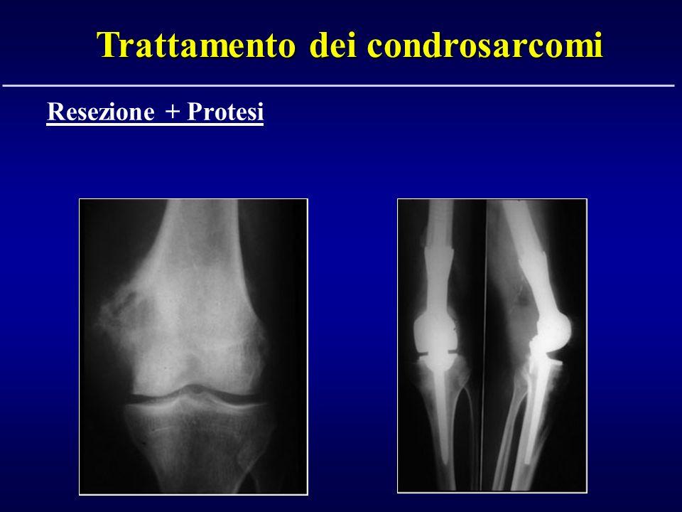 Trattamento dei condrosarcomi Resezione + Protesi