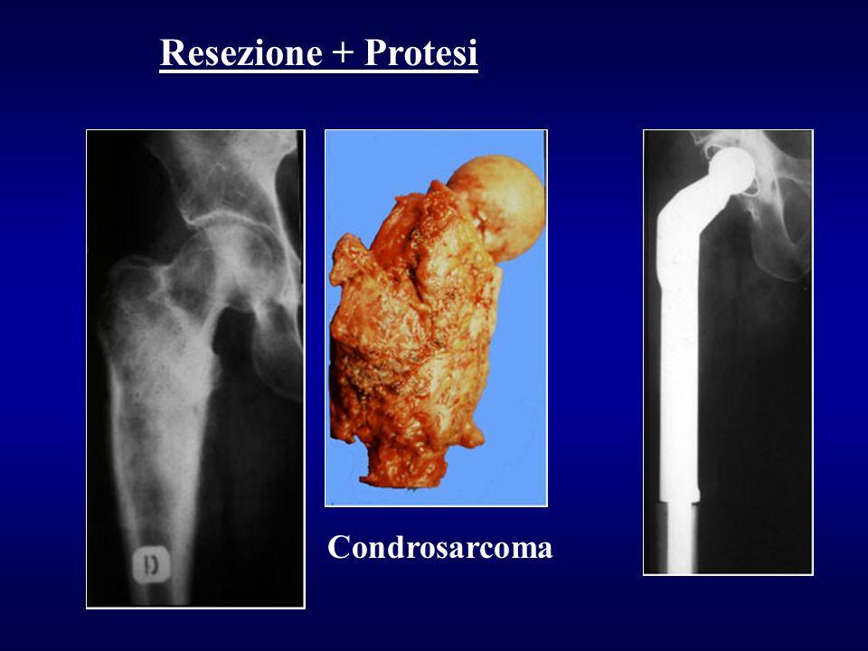 Condrosarcoma
