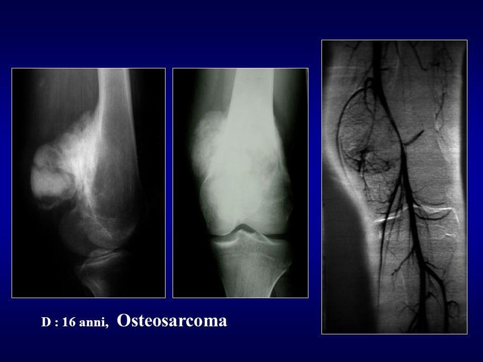 D : 16 anni, Osteosarcoma