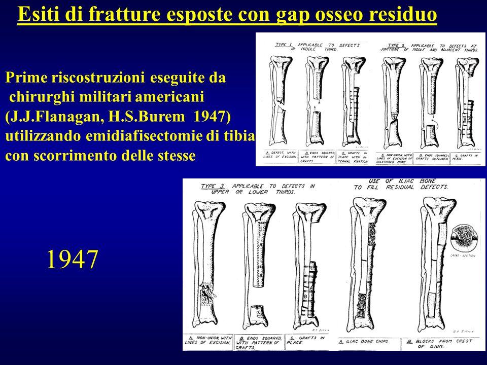Esiti di fratture esposte con gap osseo residuo Prime riscostruzioni eseguite da chirurghi militari americani (J.J.Flanagan, H.S.Burem 1947) utilizzan