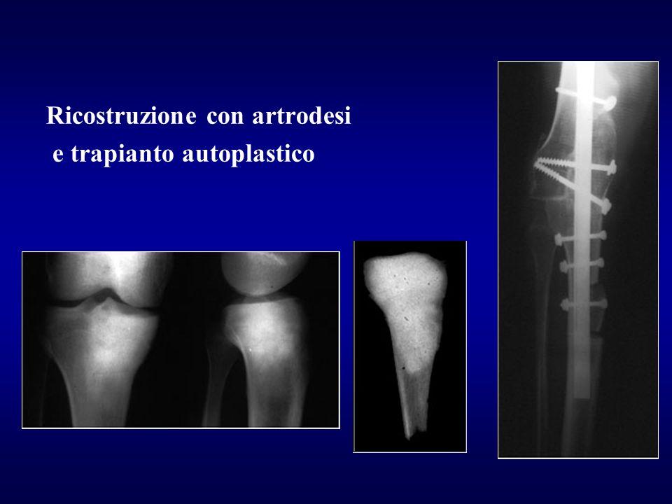 Ricostruzione con artrodesi e trapianto autoplastico