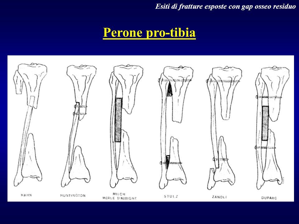 Esiti di fratture esposte con gap osseo residuo Perone pro-tibia