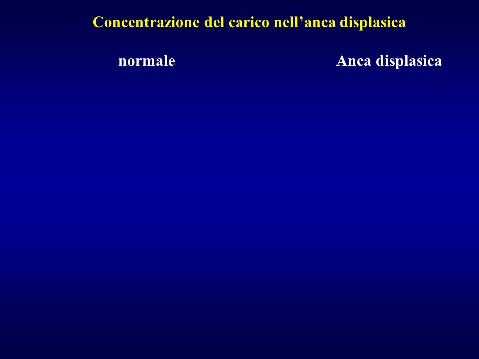 normaleAnca displasica Concentrazione del carico nellanca displasica