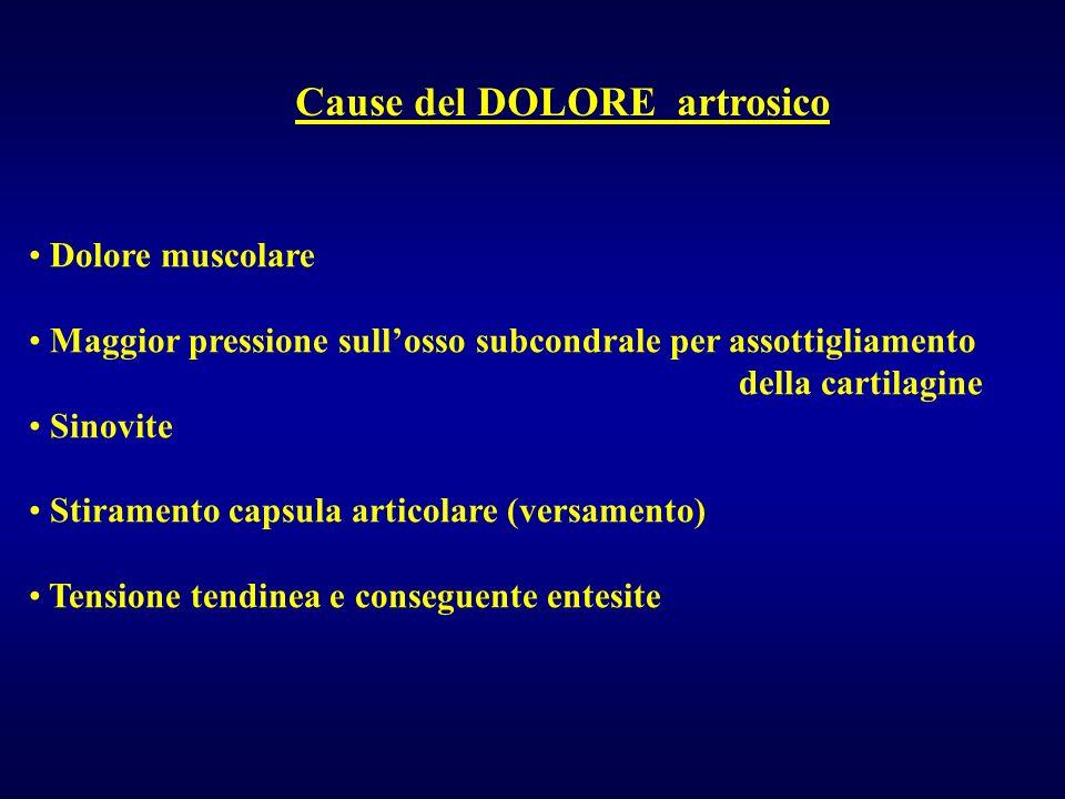 Cause del DOLORE artrosico Dolore muscolare Maggior pressione sullosso subcondrale per assottigliamento della cartilagine Sinovite Stiramento capsula