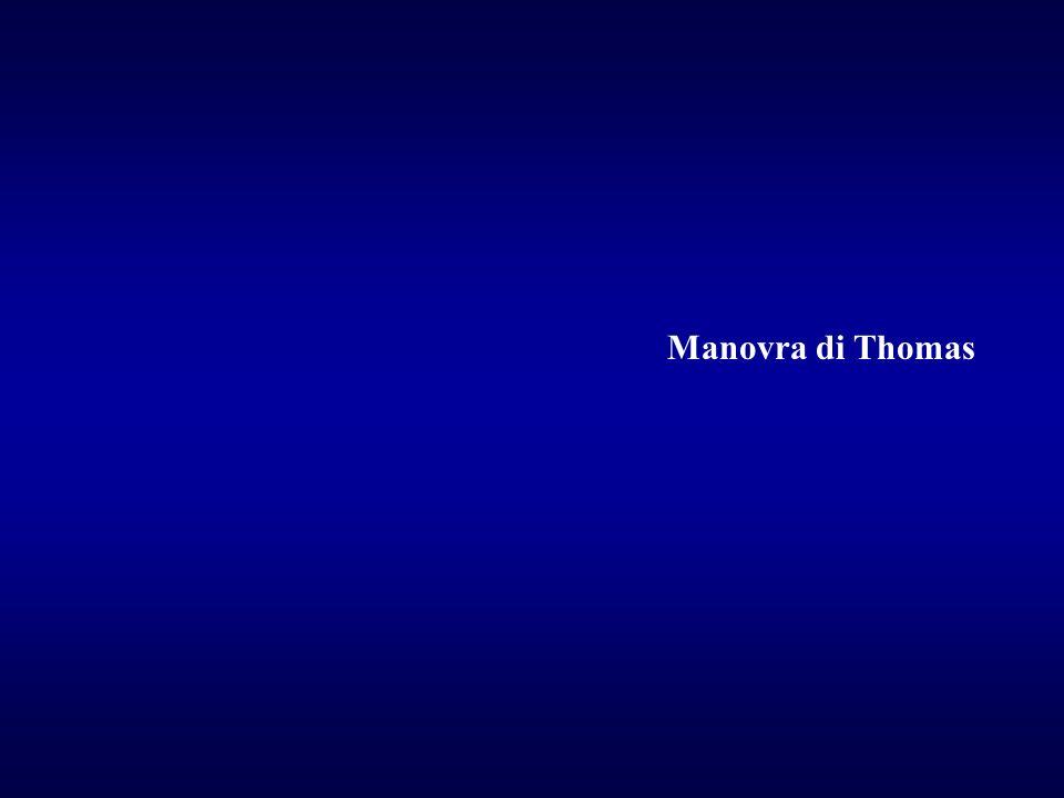 Manovra di Thomas