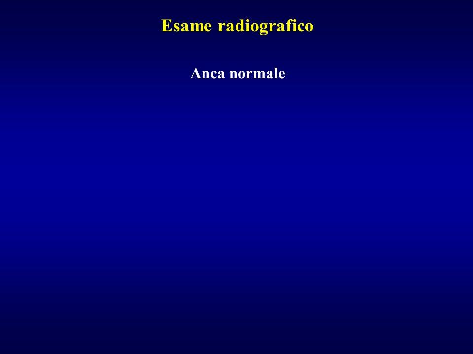 Anca normale Esame radiografico