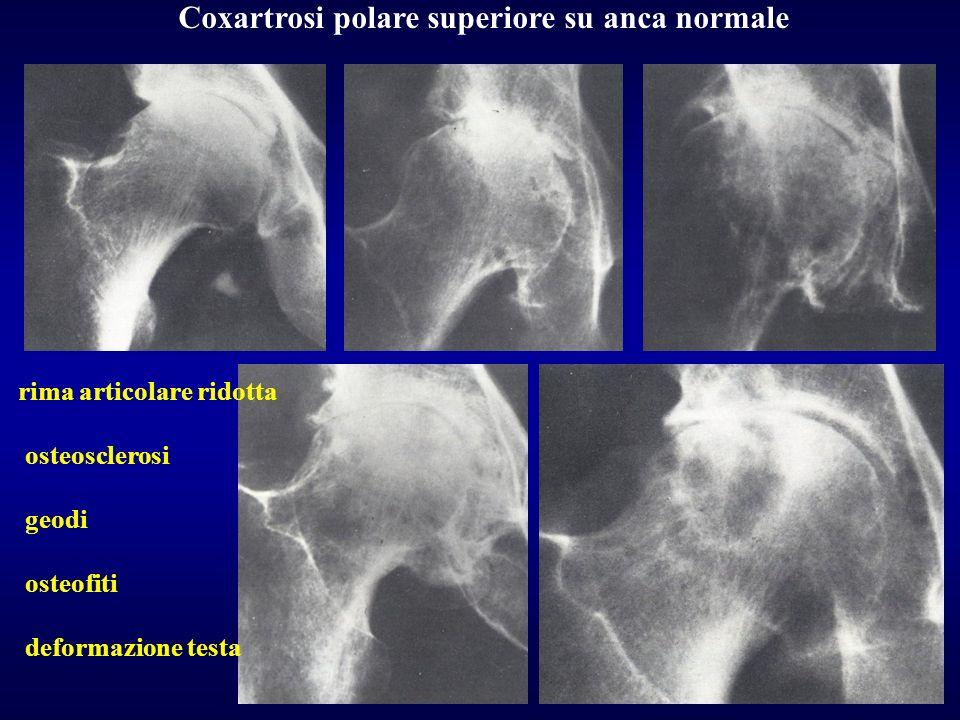 Coxartrosi polare superiore su anca normale rima articolare ridotta osteosclerosi geodi osteofiti deformazione testa