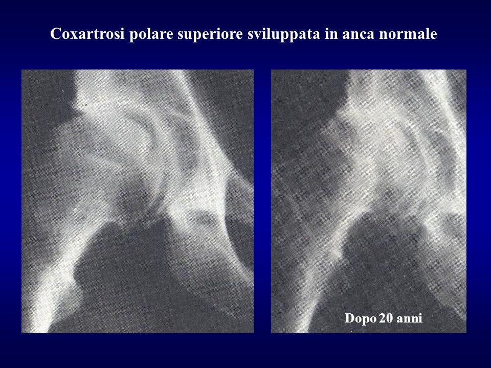 Dopo 20 anni Coxartrosi polare superiore sviluppata in anca normale