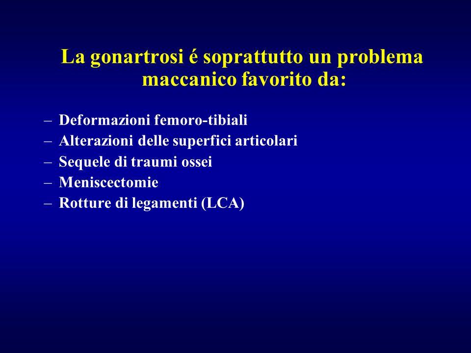 La gonartrosi é soprattutto un problema maccanico favorito da: –Deformazioni femoro-tibiali –Alterazioni delle superfici articolari –Sequele di traumi