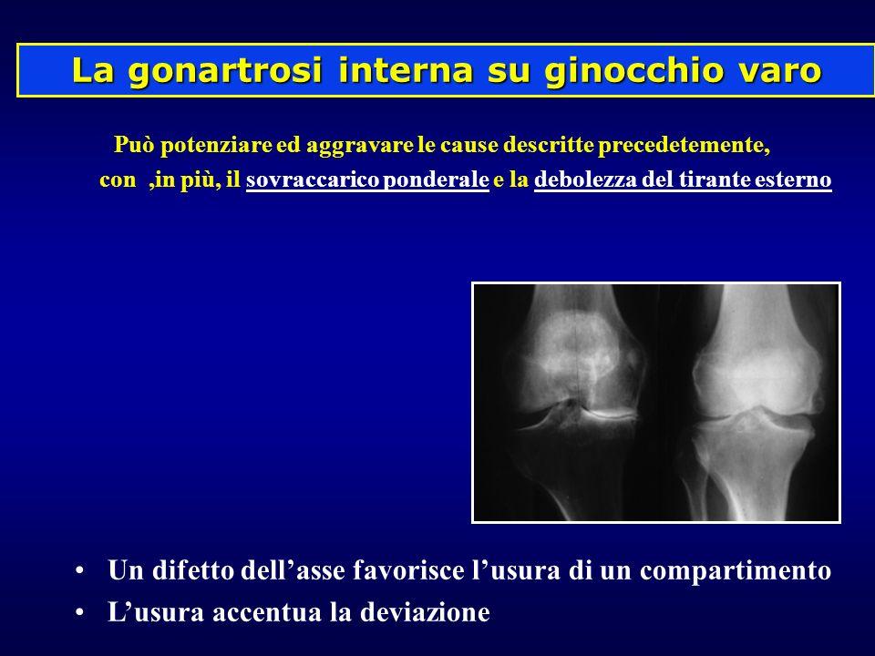 La gonartrosi interna su ginocchio varo Può potenziare ed aggravare le cause descritte precedetemente, con,in più, il sovraccarico ponderale e la debo