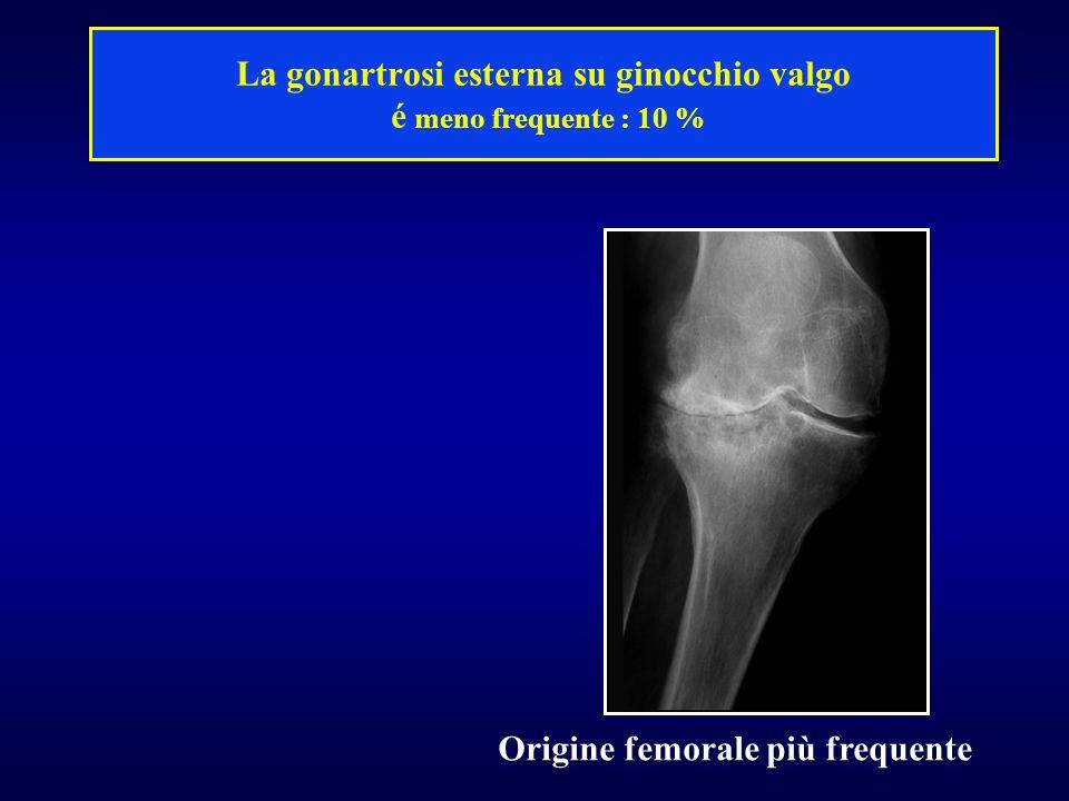 La gonartrosi esterna su ginocchio valgo é meno frequente : 10 % Origine femorale più frequente