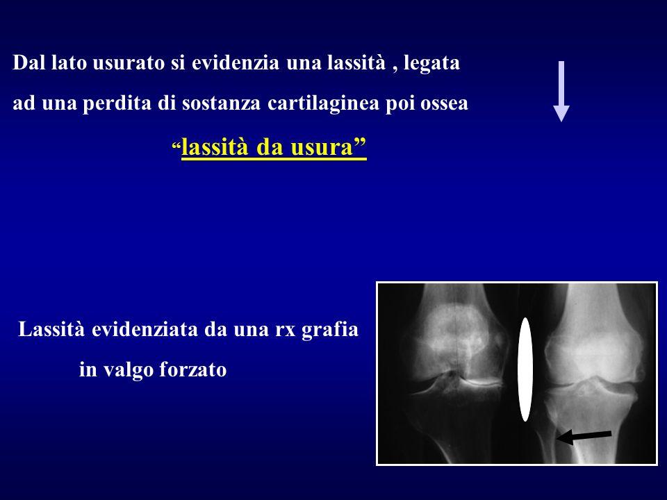 Dal lato usurato si evidenzia una lassità, legata ad una perdita di sostanza cartilaginea poi ossea lassità da usura Lassità evidenziata da una rx gra