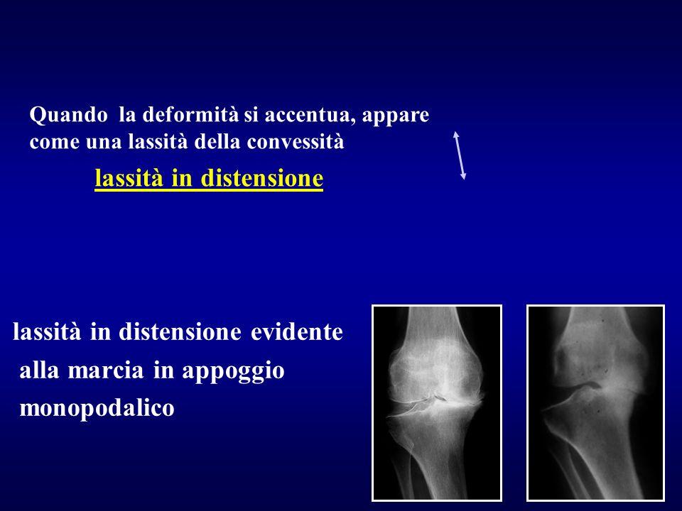 Le radiografie che mostrano la deformità