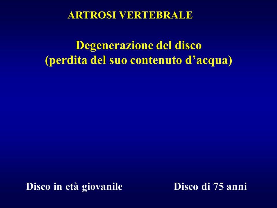 Degenerazione del disco (perdita del suo contenuto dacqua) Disco in età giovanile Disco di 75 anni ARTROSI VERTEBRALE