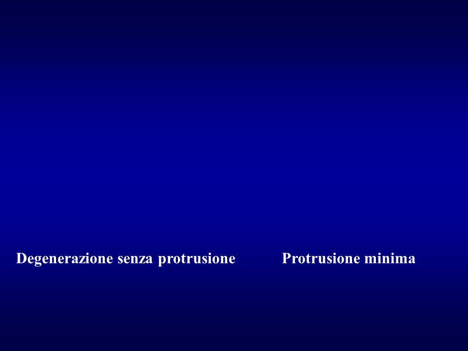 - Diminuzione del diametro verticale dei forami - Usura delle faccette e scivolamento sul piano verticale ed antero- posteriore: restringimento dei forami Conseguenze del pinzamento del disco