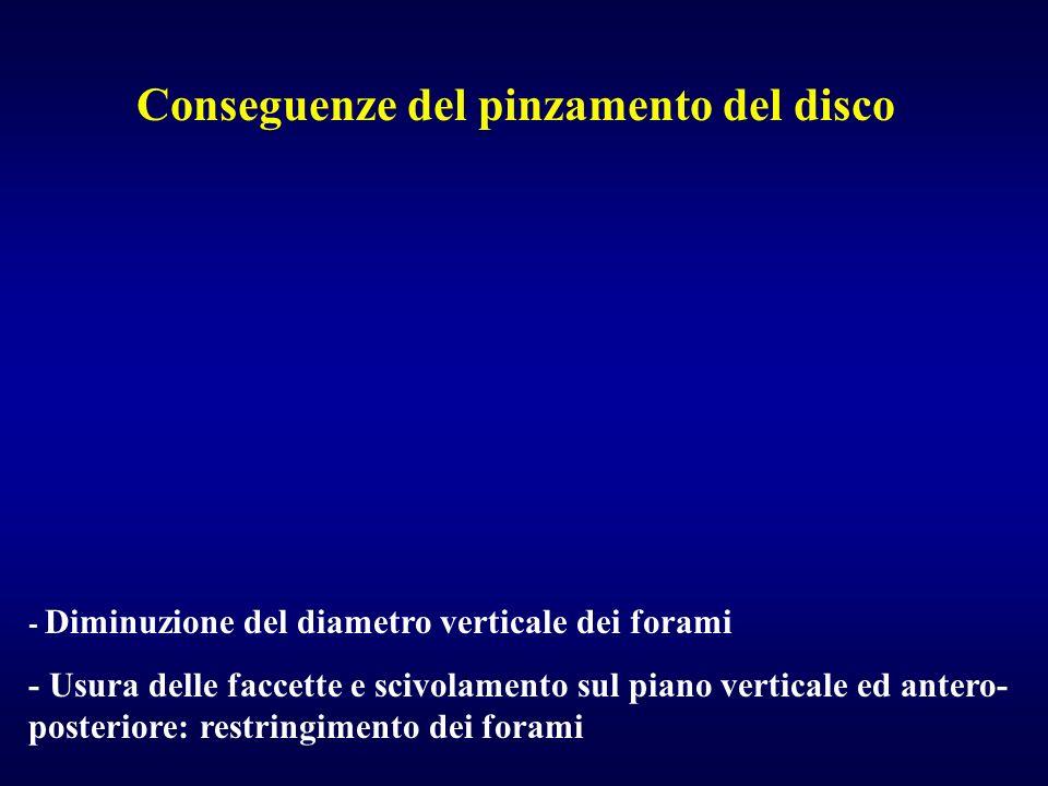 - Diminuzione del diametro verticale dei forami - Usura delle faccette e scivolamento sul piano verticale ed antero- posteriore: restringimento dei fo