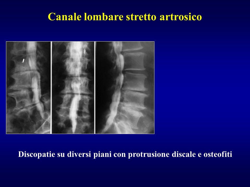 Discopatie su diversi piani con protrusione discale e osteofiti Canale lombare stretto artrosico