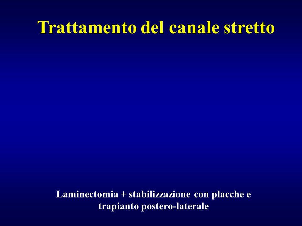 Laminectomia + stabilizzazione con placche e trapianto postero-laterale Trattamento del canale stretto