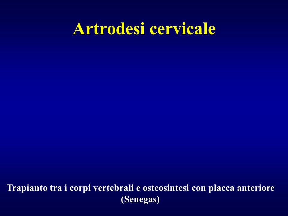 Artrodesi cervicale Interposizione tra i corpi vertebrali di gabbie o di sostituti ossei