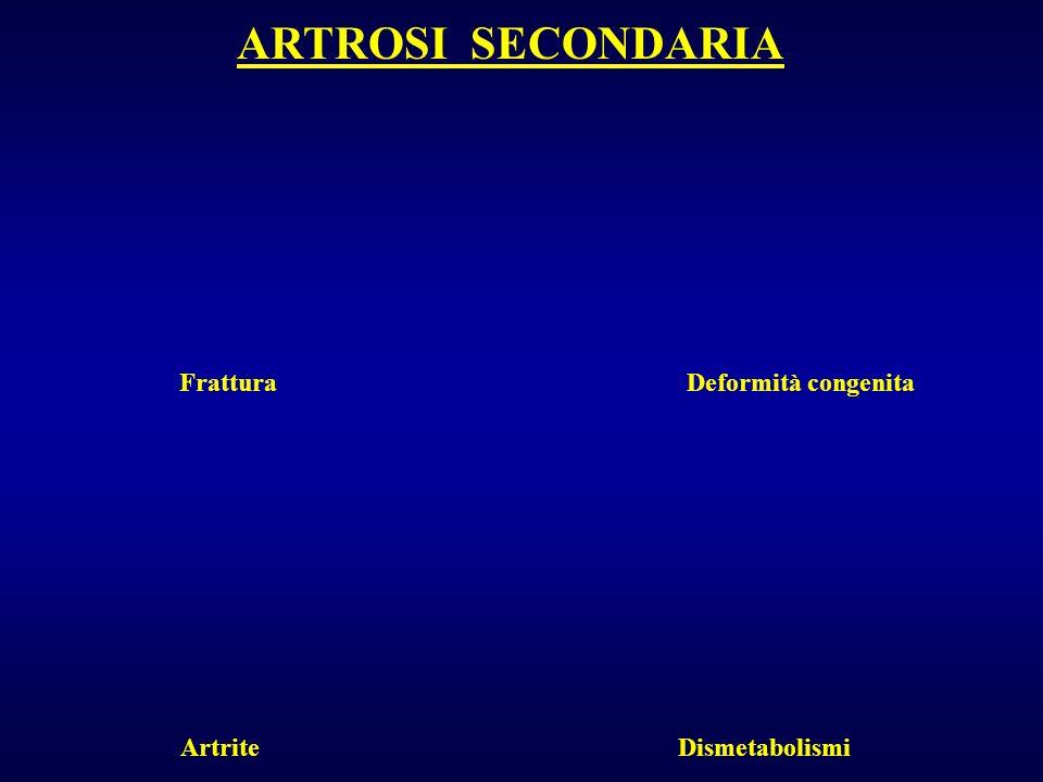 ARTROSI SECONDARIA FratturaDeformità congenita ArtriteDismetabolismi