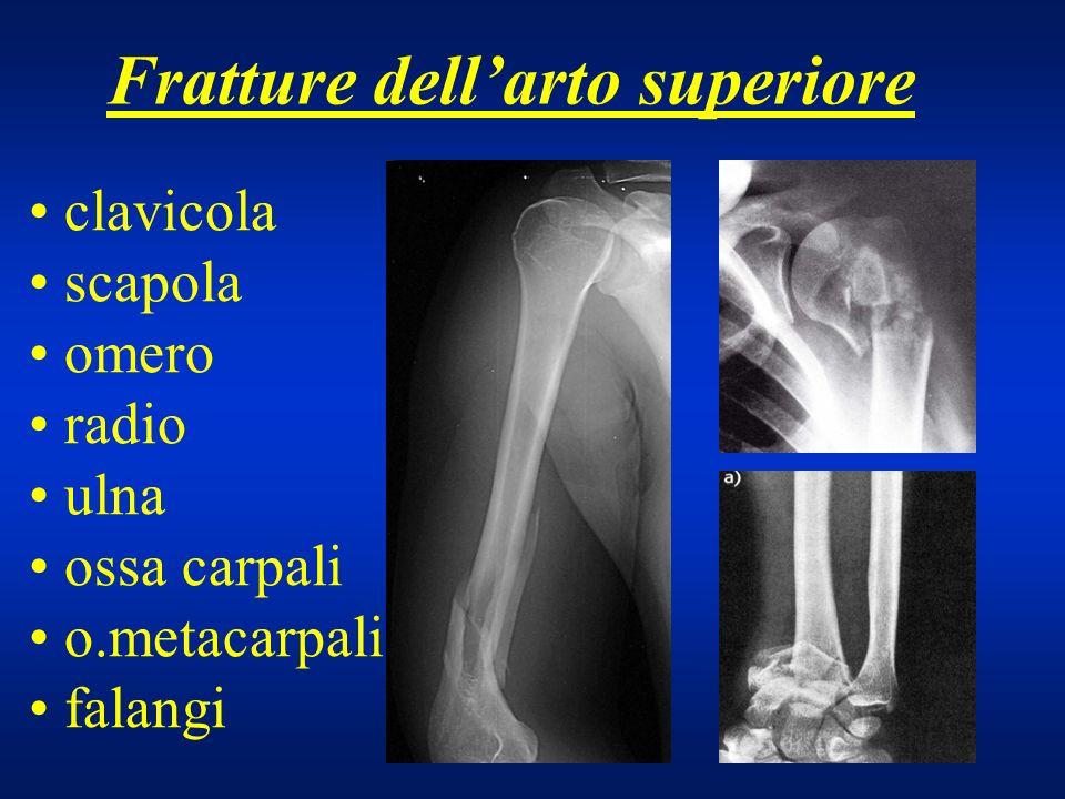 Fratture di clavicola trauma diretto o caduta su spalla ad arto addotto frequente la scomposizione dei monconi dovuta al peso del braccio distalmente e allazione muscolare prossimalmente