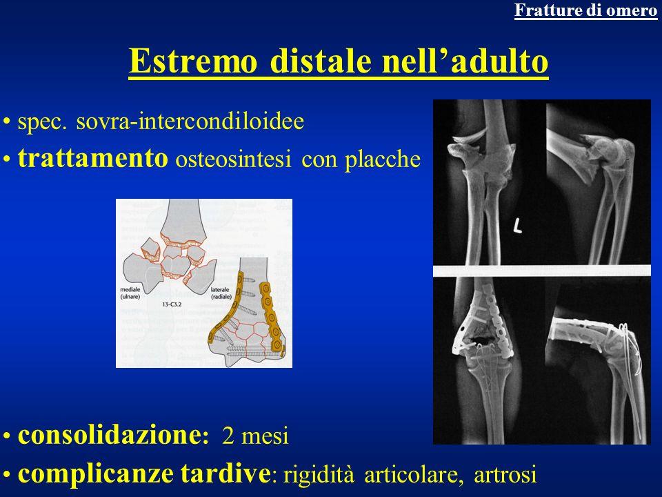 Estremo distale nelladulto spec. sovra-intercondiloidee trattamento osteosintesi con placche consolidazione : 2 mesi complicanze tardive : rigidità ar