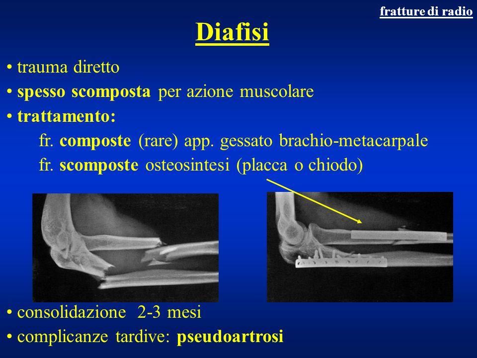 Diafisi trauma diretto spesso scomposta per azione muscolare trattamento: fr. composte (rare) app. gessato brachio-metacarpale fr. scomposte osteosint