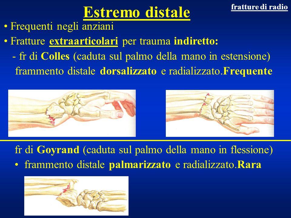 Estremo distale Frequenti negli anziani Fratture extraarticolari per trauma indiretto: - fr di Colles (caduta sul palmo della mano in estensione) fram