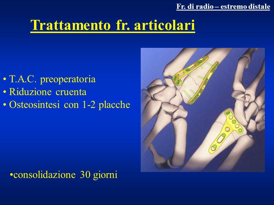 Trattamento fr. articolari Fr. di radio – estremo distale T.A.C. preoperatoria Riduzione cruenta Osteosintesi con 1-2 placche consolidazione 30 giorni