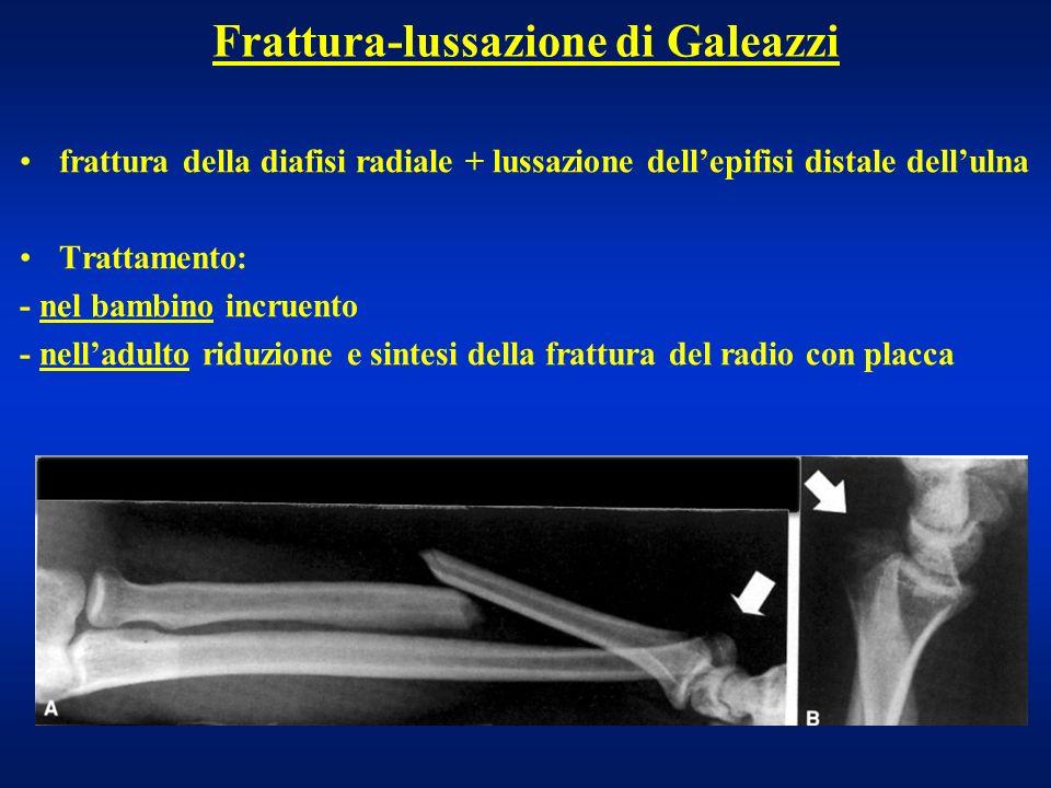 Frattura-lussazione di Galeazzi frattura della diafisi radiale + lussazione dellepifisi distale dellulna Trattamento: - nel bambino incruento - nellad