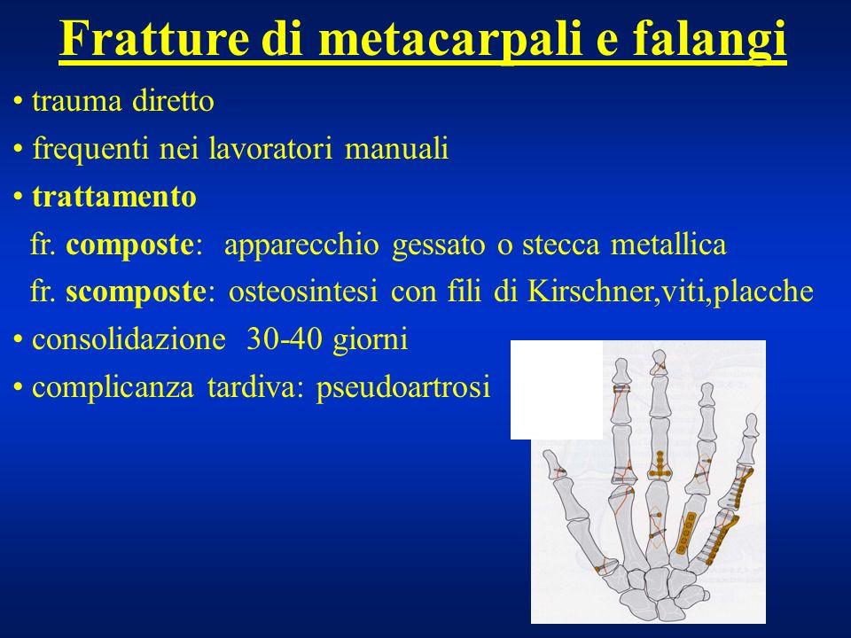 Fratture di metacarpali e falangi trauma diretto frequenti nei lavoratori manuali trattamento fr. composte: apparecchio gessato o stecca metallica fr.