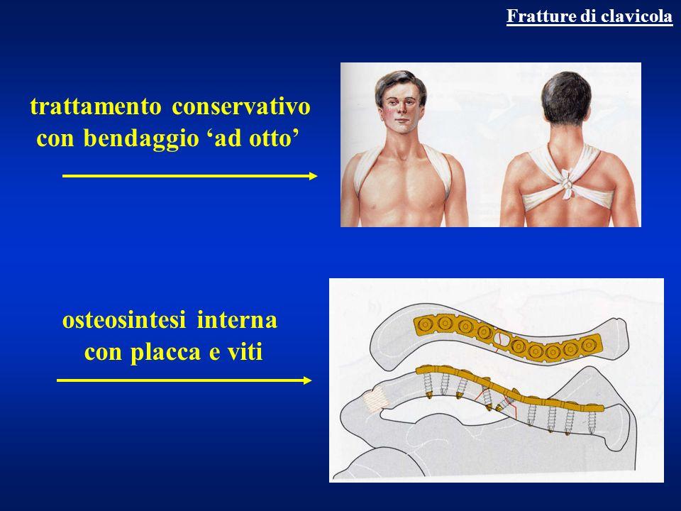 Fratture di scapola trauma diretto (spina, acromion) trauma indiretto (glenoide,corpo,collo) da strappamento (coracoide) fr articolari ed extra-articolari diagnosi clinica + rx consolidazione 25 giorni complicanze tardive: artrosi gleno-omerale