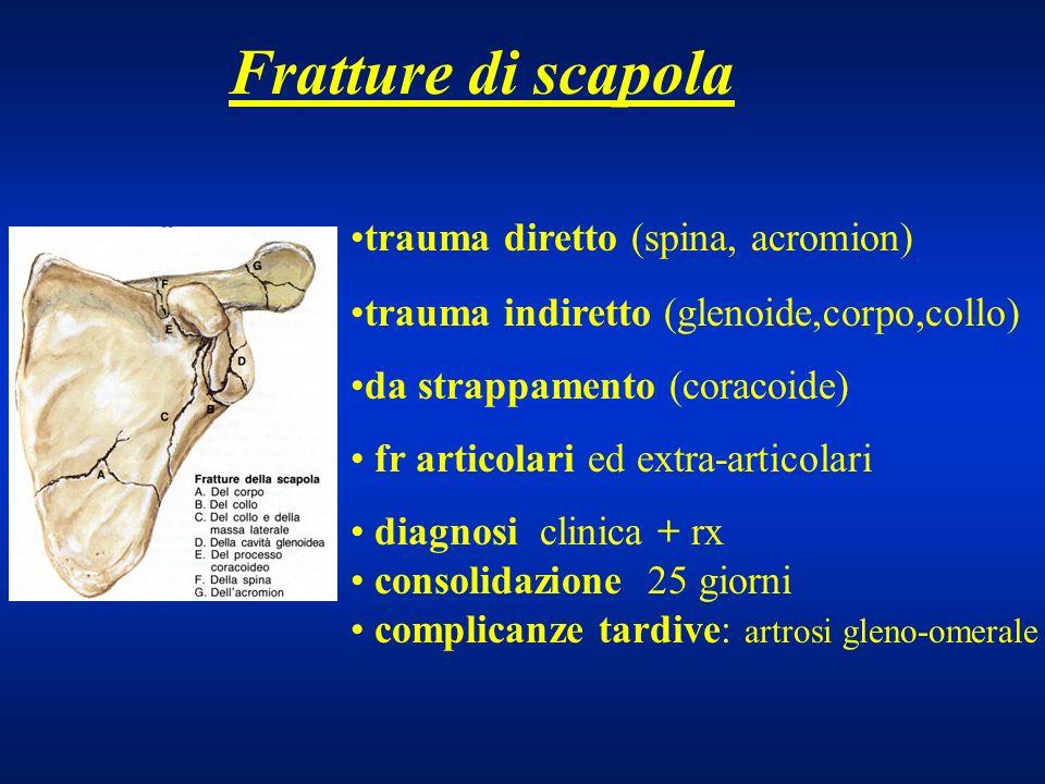 Fratture di scapola trauma diretto (spina, acromion) trauma indiretto (glenoide,corpo,collo) da strappamento (coracoide) fr articolari ed extra-artico