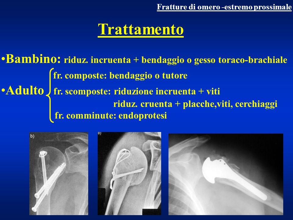 Trattamento fr.extraarticolari Fr.
